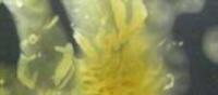 Immunoassay for detection of Pseudomonas aeruginosa Quorum Sensing molecules