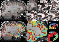 Whole Brain Visualization of Distinct Cortical Layers by MRI